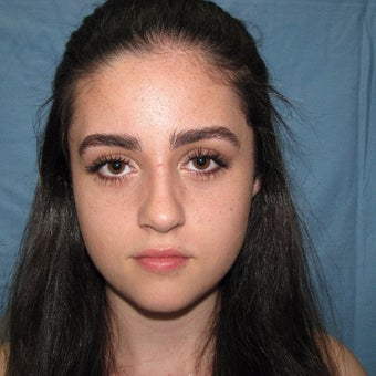 18-24 year old woman treated with Rhinoplasty after 2134462