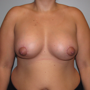 25-34 year old woman treated with Breast Lift with Implants after 3124202