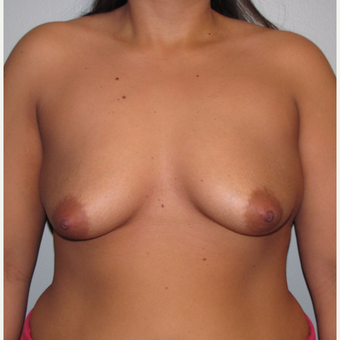 25-34 year old woman treated with Breast Lift with Implants before 3124202