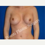 35-44 year old woman treated with Breast Augmentation before 3089127