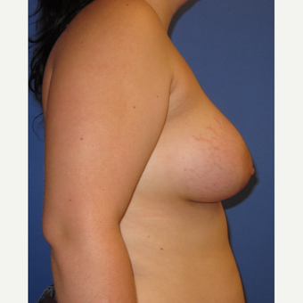 18-24 year old woman treated with Breast Augmentation (360cc) after 3262638