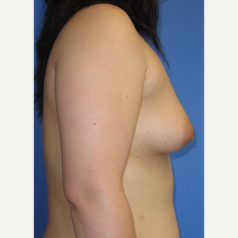 18-24 year old woman treated with Breast Augmentation (360cc) before 3262638