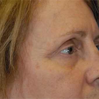 65-74 year old woman treated with Botox before 1789770