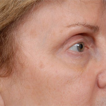65-74 year old woman treated with Botox after 1789770