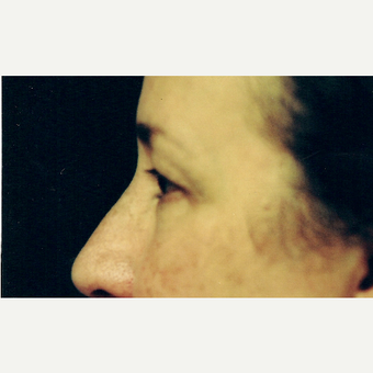 45-54 year old woman treated with Eyelid Surgery before 3236359