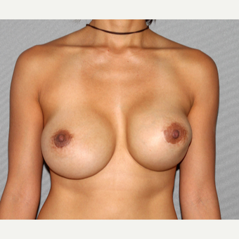 35-44 year old woman treated with Breast Implant Revision before 3366890