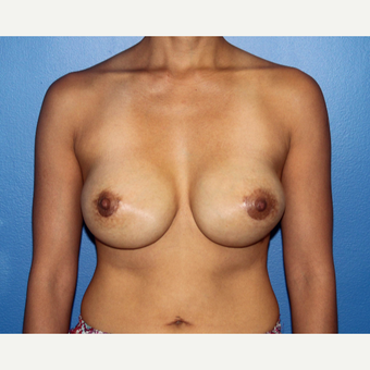 35-44 year old woman treated with Breast Implant Revision after 3366890