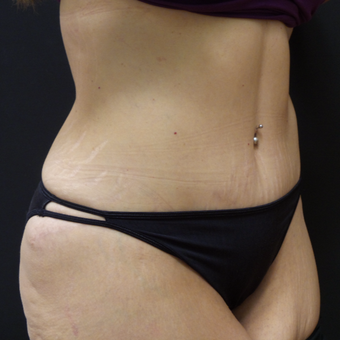 Tummy Tuck after 3014870