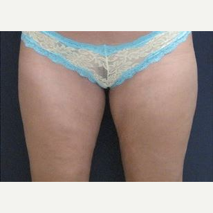 25-34 year old woman treated with Liposuction after 2993238