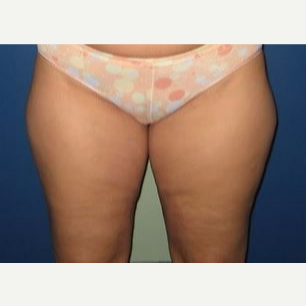 25-34 year old woman treated with Liposuction before 2993238