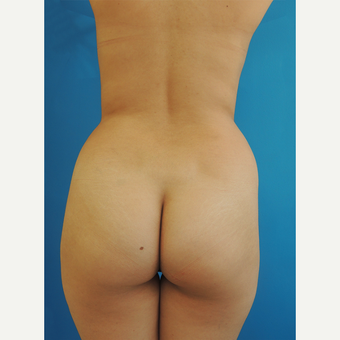 18-24 year old woman treated with Brazilian Butt Lift before 3107897