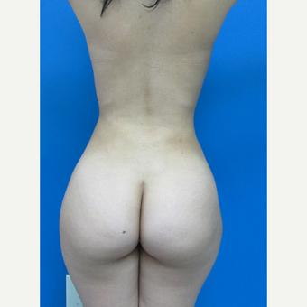 18-24 year old woman treated with Brazilian Butt Lift after 3107897