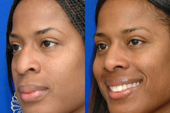 African American Woman after ethnic rhinoplasty