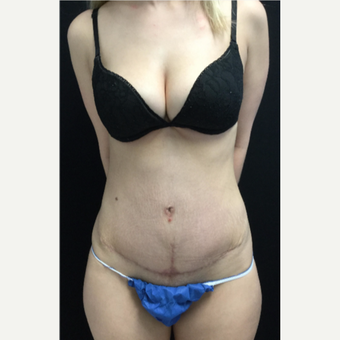 25-34 year old woman treated with Tummy Tuck after 3219030