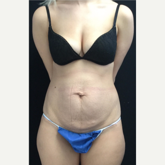 25-34 year old woman treated with Tummy Tuck before 3219030