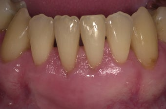 53 year old male treated for mucogingival defect after 1493911