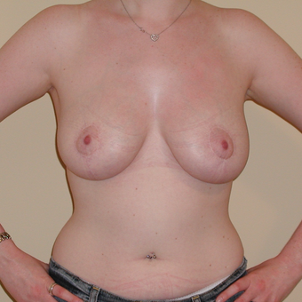 22 year old woman treated with Breast Lift after 3482496