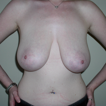 22 year old woman treated with Breast Lift before 3482496