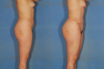 Abdominoplasty, liposuction of flanks and back, and fat injections to the buttocks. before 266481