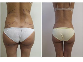 liposuction before 342161
