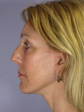 Eyelid Surgery after 280408