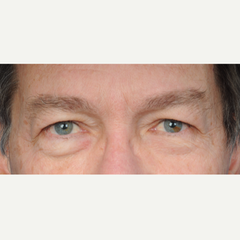 66 year old man treated with upper lower blepharoplasty before 3465782