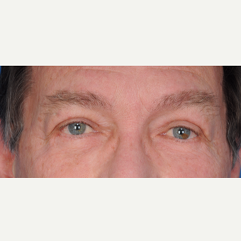 66 year old man treated with upper lower blepharoplasty after 3465782