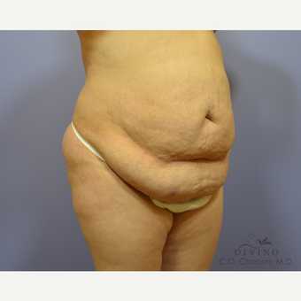 25-34 year old woman treated with Tummy Tuck before 3422108