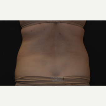 55-64 year old woman treated with CoolSculpting before 3815858