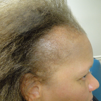 Results in a 43 year old patient with PRP treatment for hair loss before 2732208