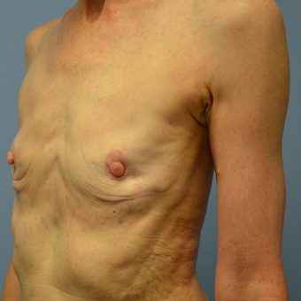 65-74 year old woman treated with Replacement of Breast Implants before 2448927
