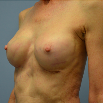 65-74 year old woman treated with Replacement of Breast Implants after 2448927