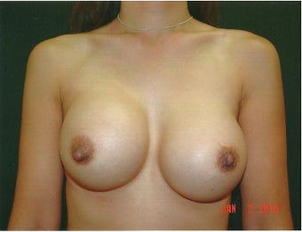 Breast Augmentation Revision using Mentor Smooth Silicone Moderate Plus  before 1060076