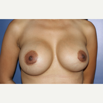 25-34 year old woman treated with Breast Implant Revision after 3695828
