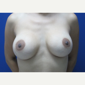 25-34 year old woman treated with Breast Implant Revision before 3695828