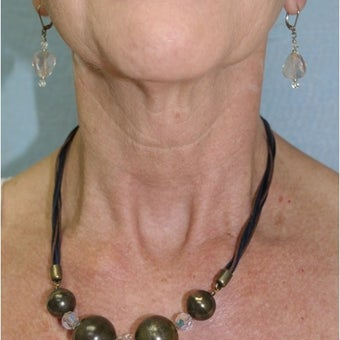 InMode Fractora to the neck of 56 year old woman after 2048227