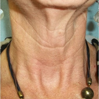 InMode Fractora to the neck of 56 year old woman before 2048227