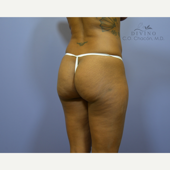 35-44 year old woman treated with Liposuction before 3421404
