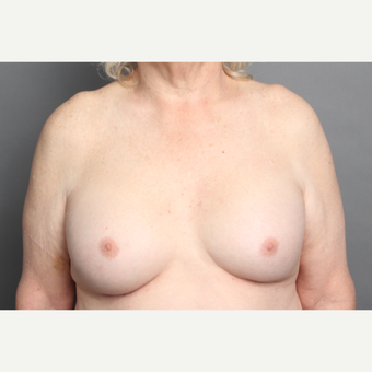 65-74 year old woman treated with MTF Breast Augmentation after 2984857