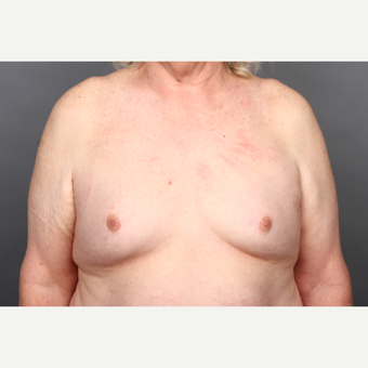 65-74 year old woman treated with MTF Breast Augmentation before 2984857