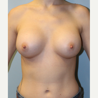 25-34 year old woman treated with Breast Augmentation after 3692110