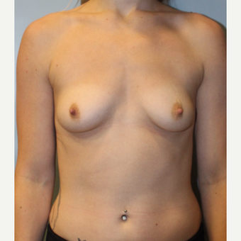 25-34 year old woman treated with Breast Augmentation before 3692110
