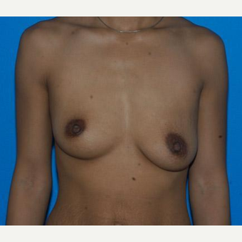Breast Augmentation before 3206558