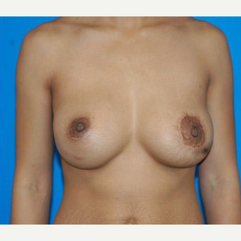 Breast Augmentation after 3206558
