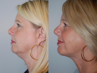 Neck Liposuction after 1182887
