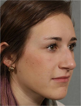 19 year old female, Italian descent, looking to reduce her dorsal hump, lift and refine her nasal tip before 1017808