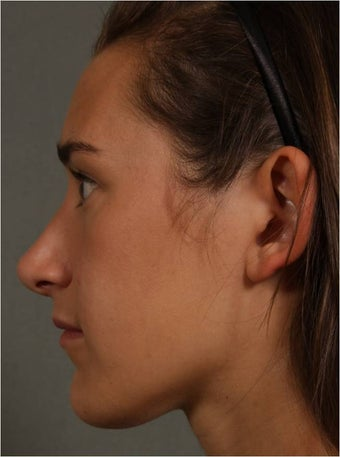 19 year old female, Italian descent, looking to reduce her dorsal hump, lift and refine her nasal tip 1017808