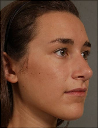 19 year old female, Italian descent, looking to reduce her dorsal hump, lift and refine her nasal tip after 1017808