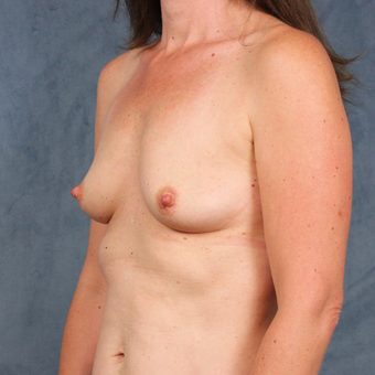 42 year old female with natural breast augmentation with silicone gel implants before 3147901