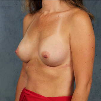 42 year old female with natural breast augmentation with silicone gel implants after 3147901